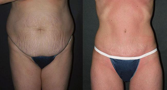 Abdominoplasty Surgery in Toronto