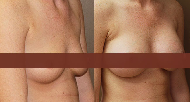 Breast Augmentation Surgery in Toronto