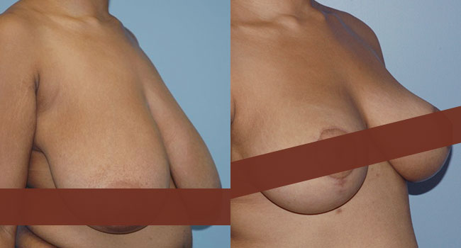 Breast Reduction Surgery in Toronto