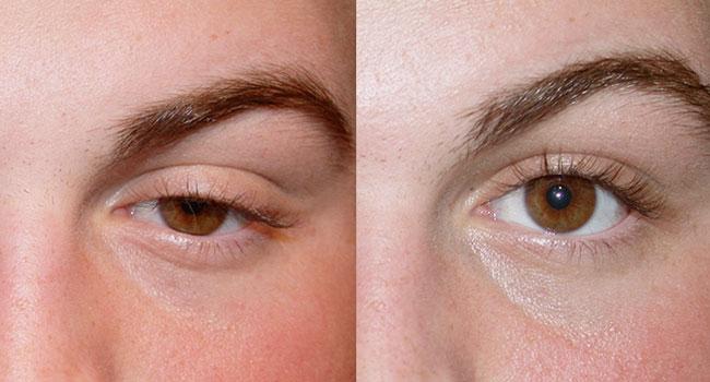 Eyelid Ptosis Surgery in Toronto
